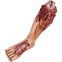 Avhugget Ben med Köttsår